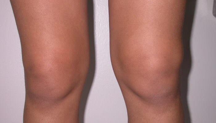 Болит коленка при сгибании и разгибании