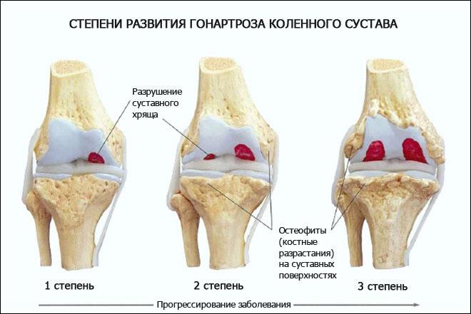Как лечить гонартроз коленного сустава лечение
