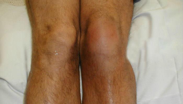 Колени при ревматоидном артрите фото thumbnail
