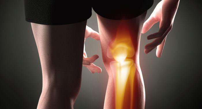 Первые симптомы проявления коленного артроза