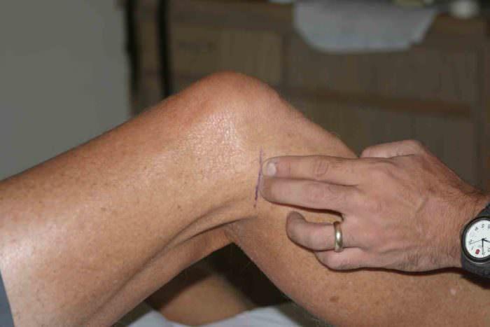 Воспаление сухожилия из-за длительного хронического перенапряжения