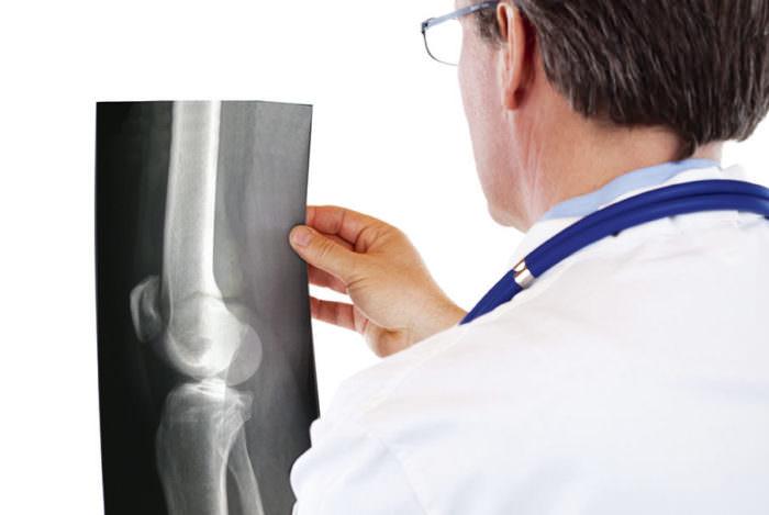 Диагностика при болях в колене