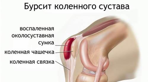 Бурсит в коленном суставе