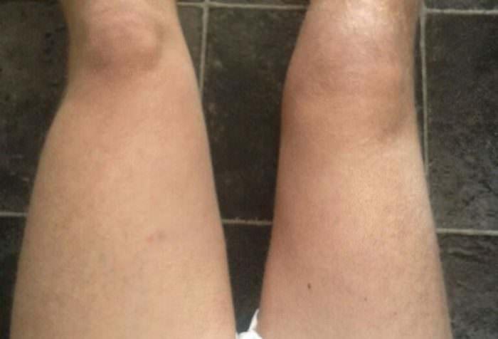 Воспаление мышц левой ноги