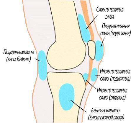 Виды бурсита коленного сустава