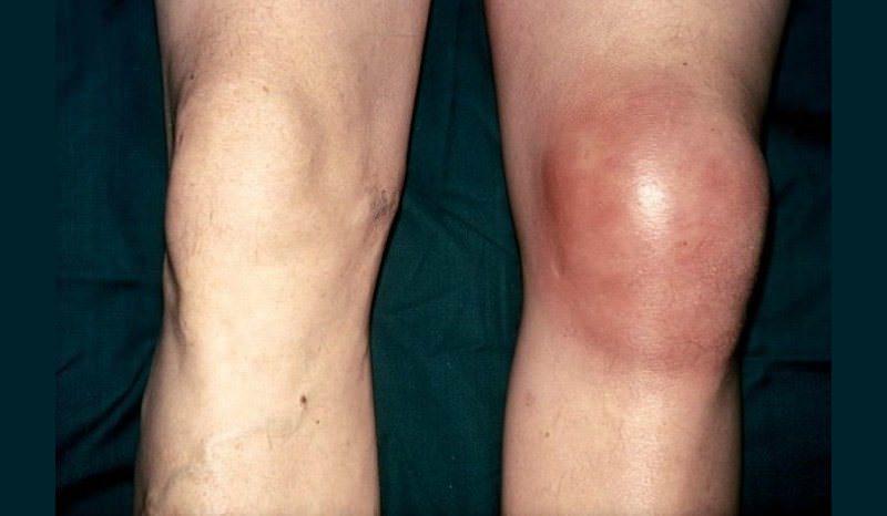 Выраженный бурсит колена