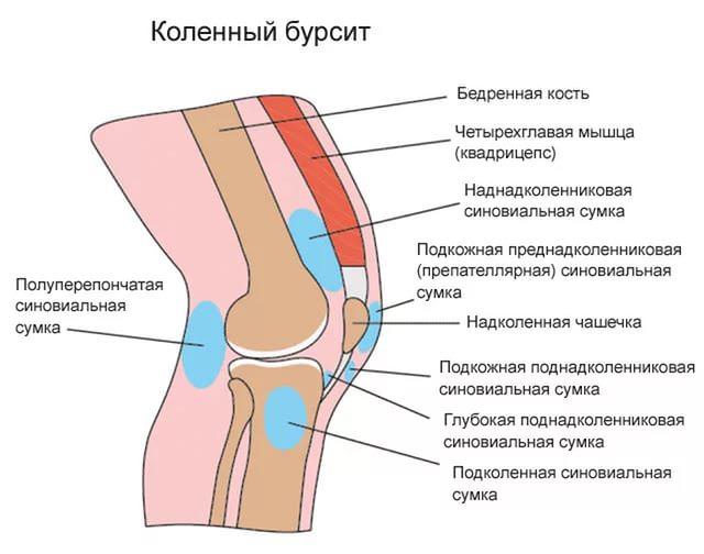 Что такое бурсит колена