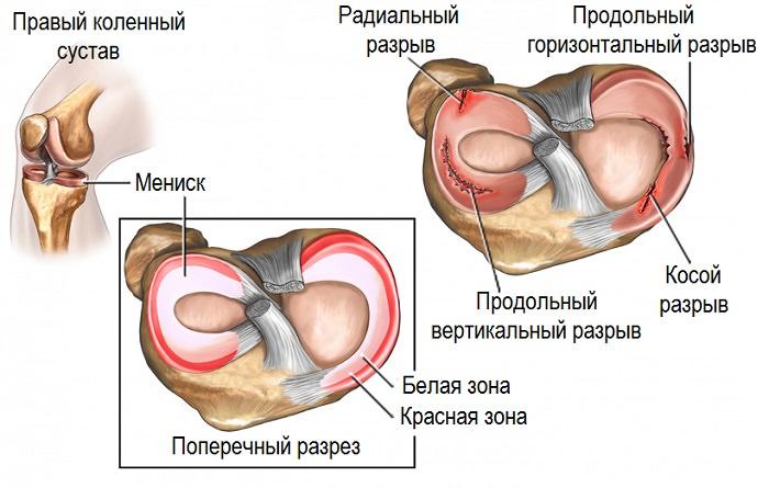Разрывы в мышце коленного сустава