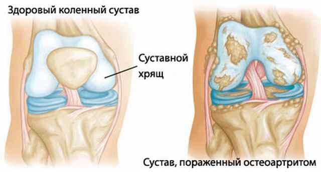 Препараты от артрита коленного сустава thumbnail