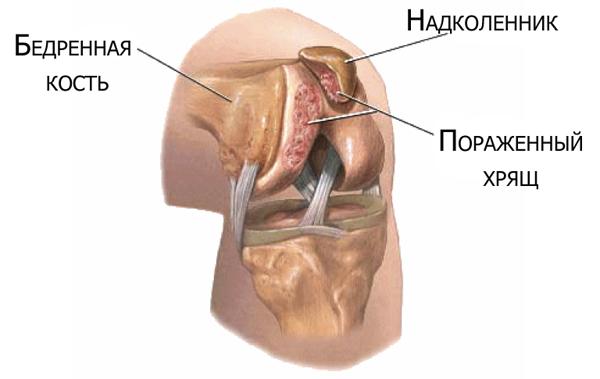 Хондромаляция мыщелков бедренной кости - классификация, симптомы и лечение