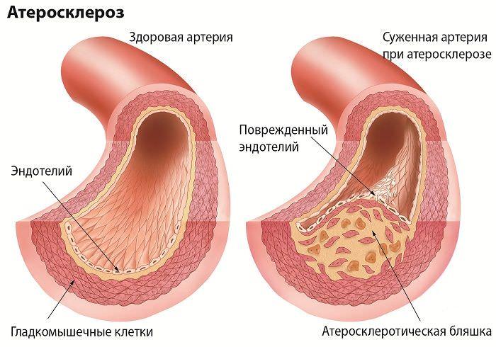 Болит нога ниже колена спереди: боль в мышцах, кости и опухоль
