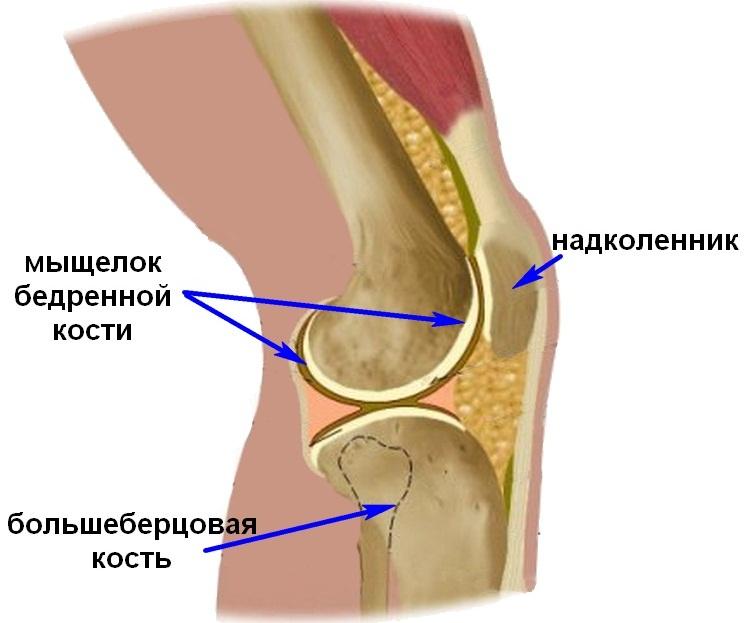 Переломы мыщелков коленного сустава