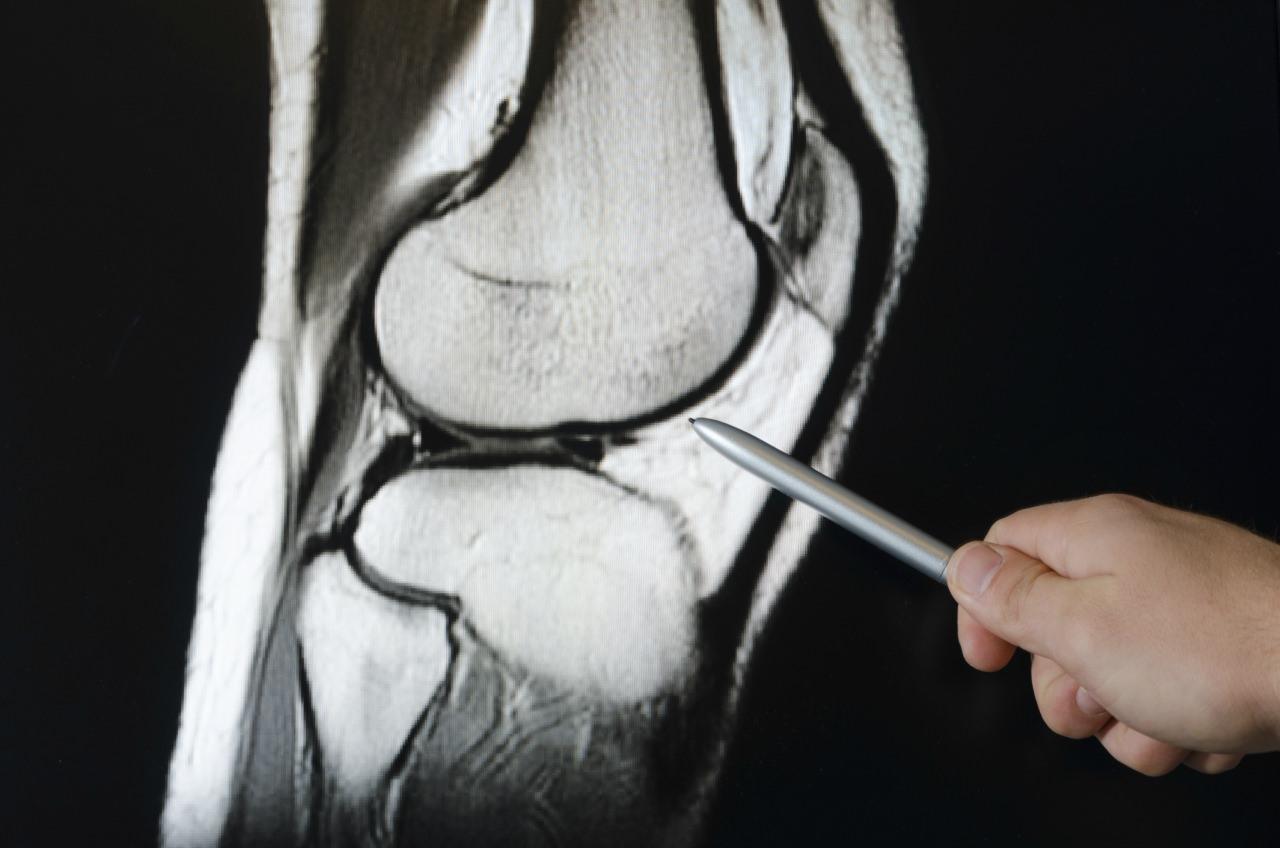 Коленный сустав образован костями