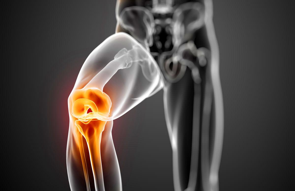 Сумка колена