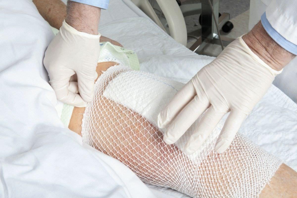 Изображение - Компресс из желатина на коленный сустав k1-7