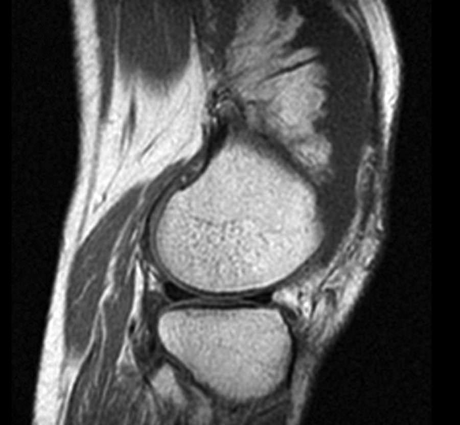 Капсульная часть сустава